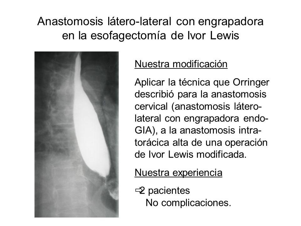 Anastomosis látero-lateral con engrapadora en la esofagectomía de Ivor Lewis Nuestra modificación Aplicar la técnica que Orringer describió para la an