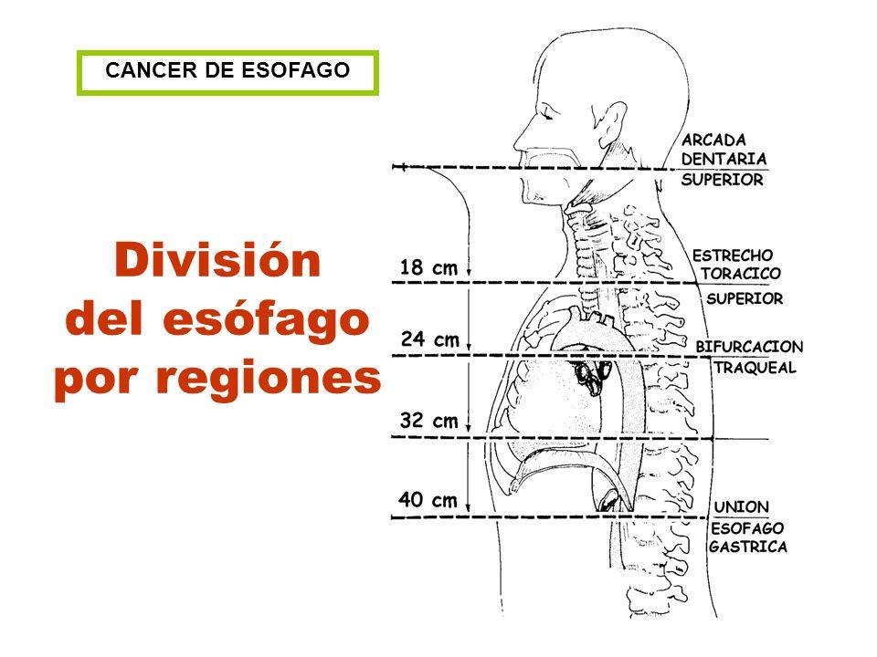 CANCER DE ESOFAGO División del esófago por regiones
