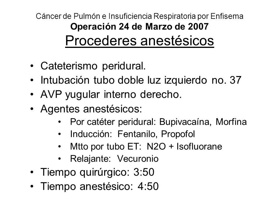 Cáncer de Pulmón e Insuficiencia Respiratoria por Enfisema Operación 24 de Marzo de 2007 Procederes anestésicos Cateterismo peridural. Intubación tubo