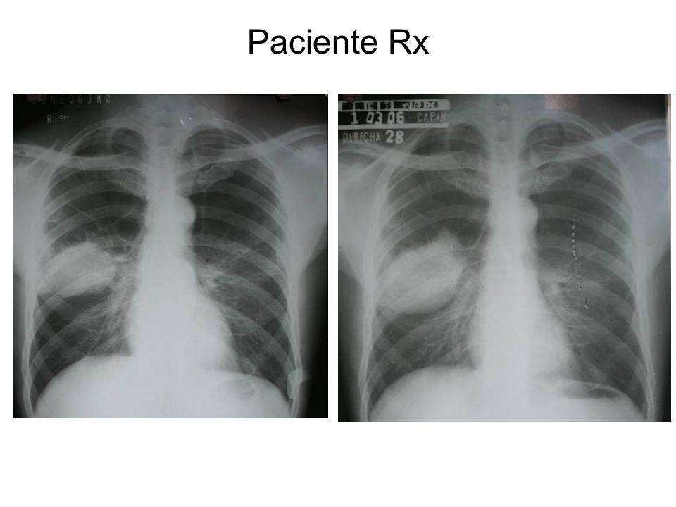 Paciente Rx