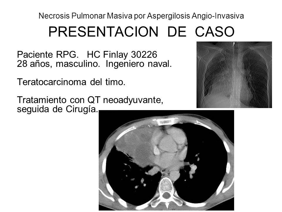 Necrosis Pulmonar Masiva por Aspergilosis Angio-Invasiva 1ra operación: Resección Tumor Mediastinal (16-9-2006) Incision anterolateral Tumor 20 cm, pedículo en mediastino ant.