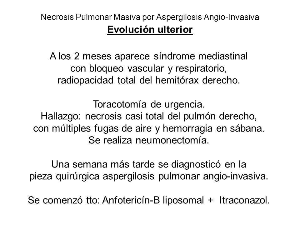 Necrosis Pulmonar Masiva por Aspergilosis Angio-Invasiva Evolución ulterior A los 2 meses aparece síndrome mediastinal con bloqueo vascular y respiratorio, radiopacidad total del hemitórax derecho.