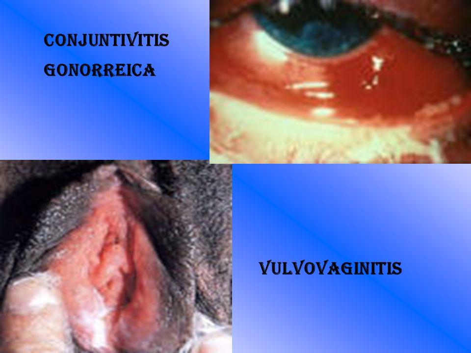 Conjuntivitis gonorreica Vulvovaginitis