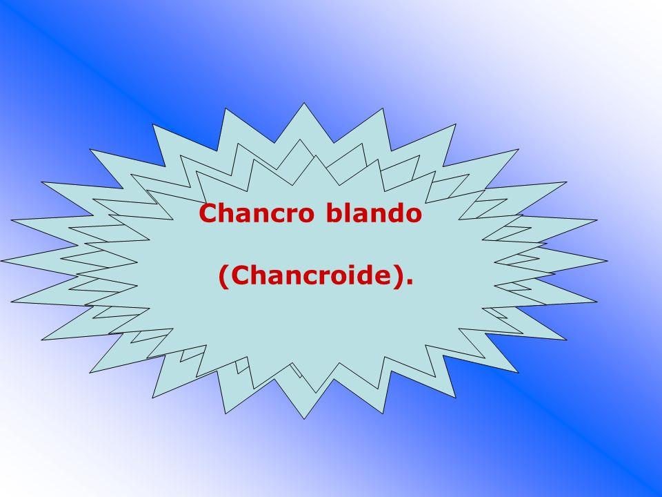 Chancro blando (Chancroide).