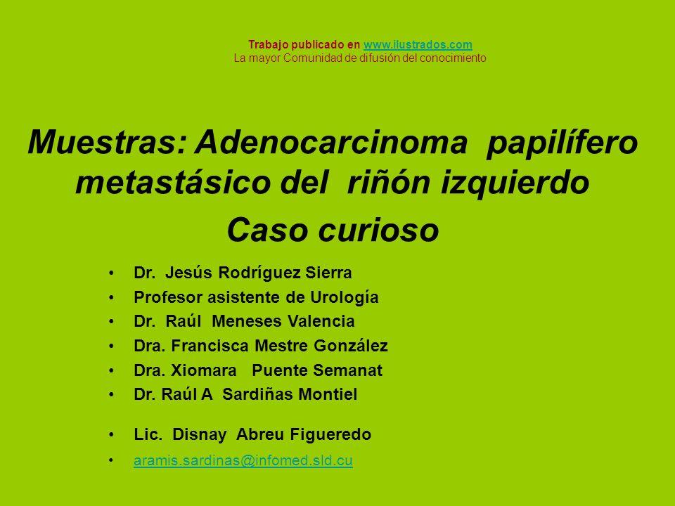 Muestras: Adenocarcinoma papilífero metastásico del riñón izquierdo Caso curioso Dr. Jesús Rodríguez Sierra Profesor asistente de Urología Dr. Raúl Me