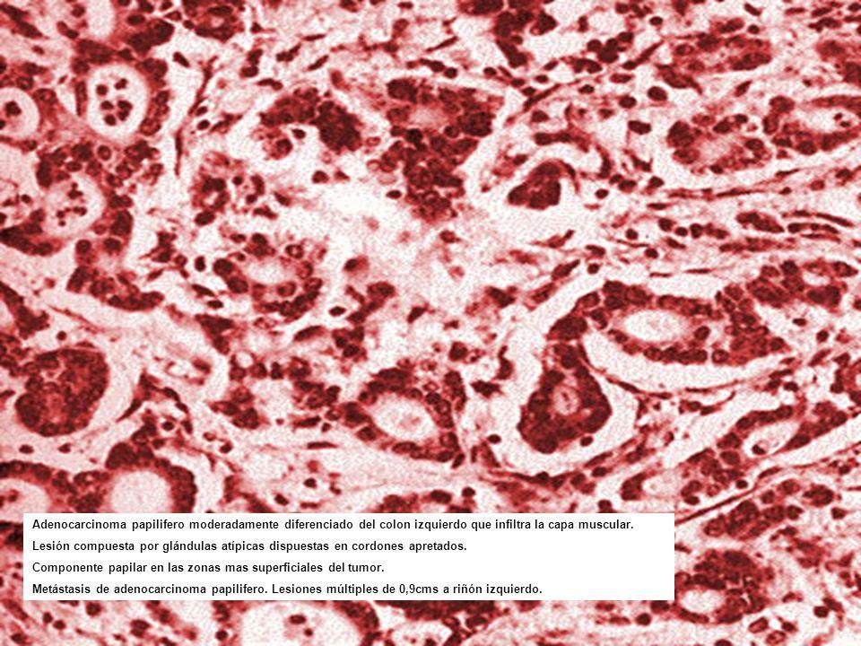 Adenocarcinoma papilifero moderadamente diferenciado del colon izquierdo que infiltra la capa muscular.