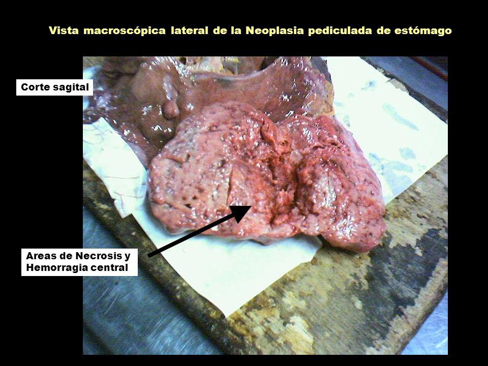 Vista macroscópica lateral de la Neoplasia pediculada de estómago Areas de Necrosis y Hemorragia central Corte sagital