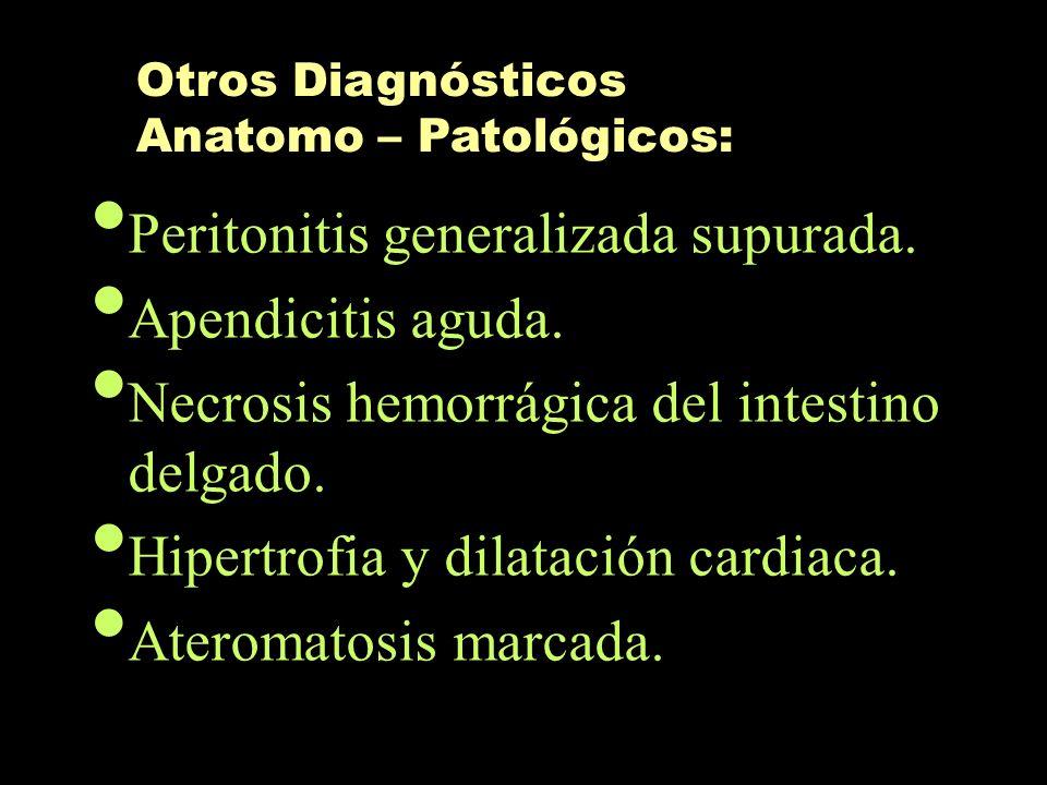Peritonitis generalizada supurada. Apendicitis aguda. Necrosis hemorrágica del intestino delgado. Hipertrofia y dilatación cardiaca. Ateromatosis marc