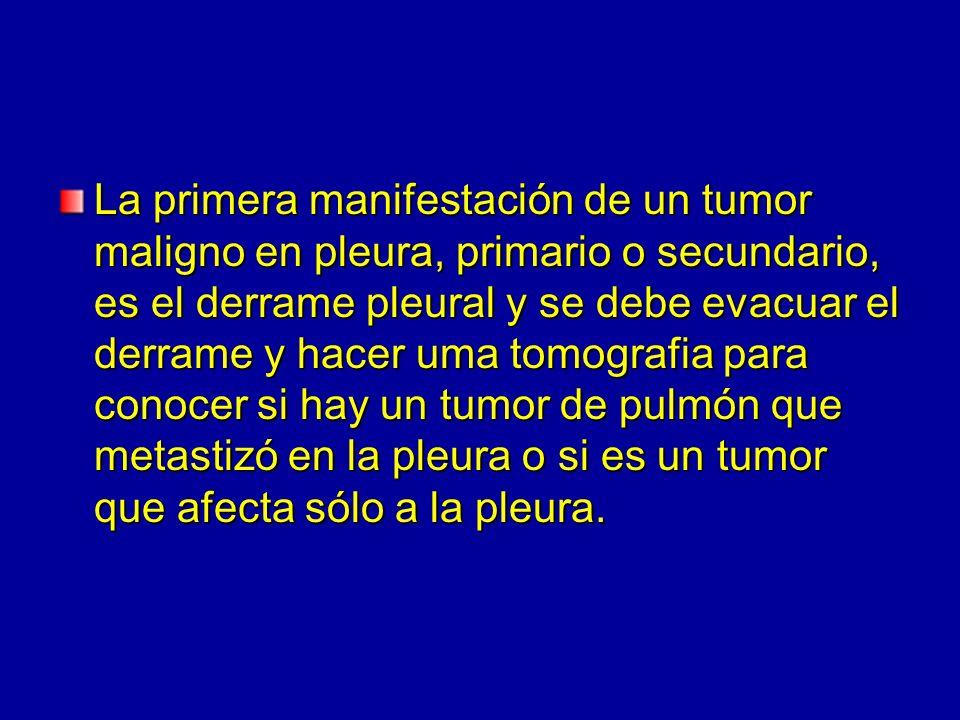 La primera manifestación de un tumor maligno en pleura, primario o secundario, es el derrame pleural y se debe evacuar el derrame y hacer uma tomograf