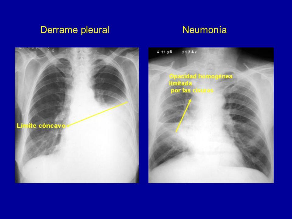 Absceso crónico Neoplasia cavitada