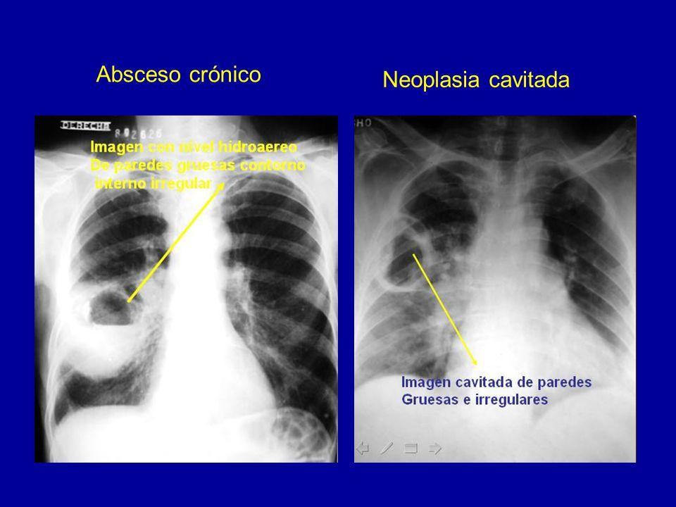 Tumor de las vainas tendinosas de nervios perifericos