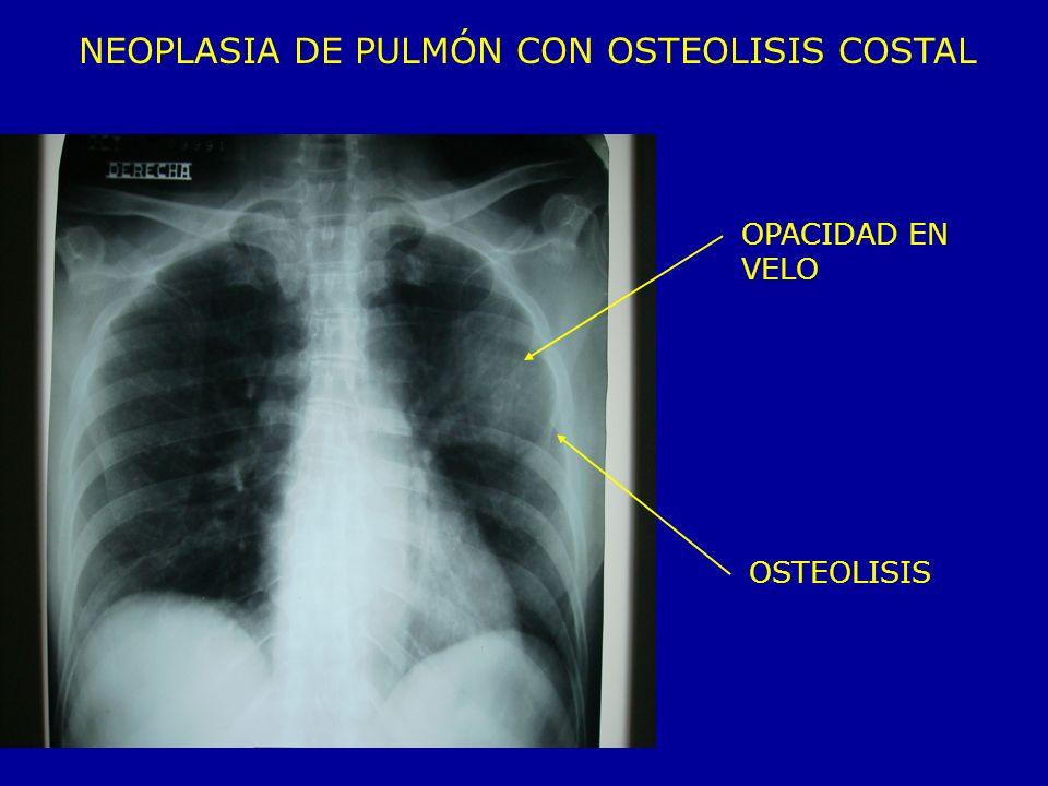 OPACIDAD EN VELO OSTEOLISIS NEOPLASIA DE PULMÓN CON OSTEOLISIS COSTAL