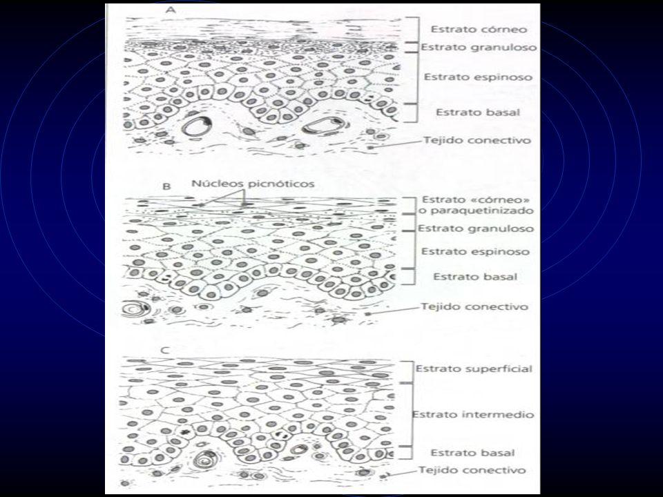 EPITELIO PLANO ESTRATIFICADO QUERATINIZADO Constituido por dos tipos de poblaciones celulares: -Intrínseca: formada por queratinocitos.
