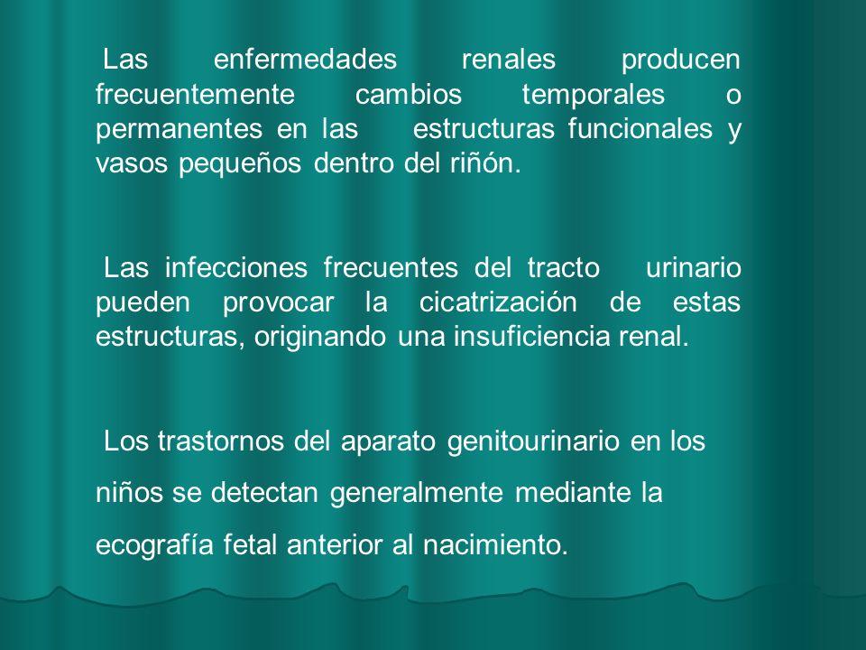 Se caracteriza por edema, oliguria, hematuria, proteinuria, hipertensión arterial y reducción de la filtración glomerular.