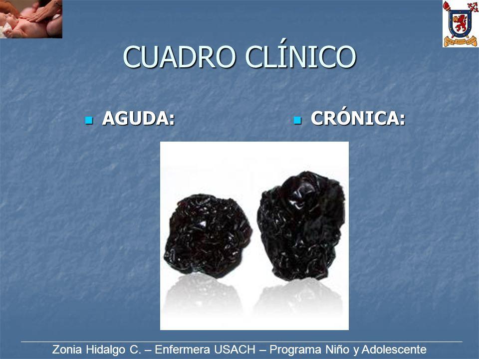 CUADRO CLÍNICO AGUDA: AGUDA: CRÓNICA: CRÓNICA: Zonia Hidalgo C. – Enfermera USACH – Programa Niño y Adolescente