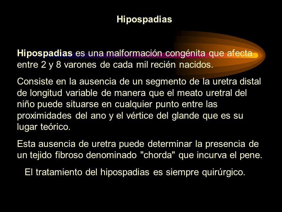 Hipospadias Hipospadias es una malformación congénita que afecta entre 2 y 8 varones de cada mil recién nacidos. Consiste en la ausencia de un segment