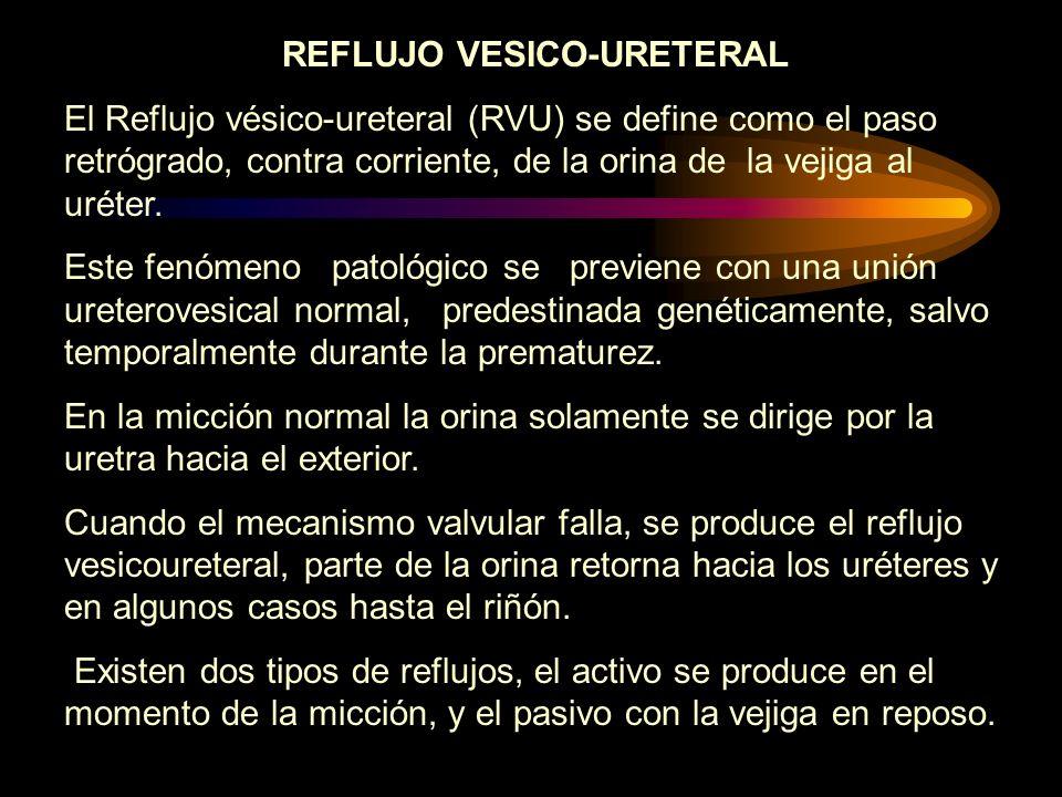 REFLUJO VESICO-URETERAL El Reflujo vésico-ureteral (RVU) se define como el paso retrógrado, contra corriente, de la orina de la vejiga al uréter. Este