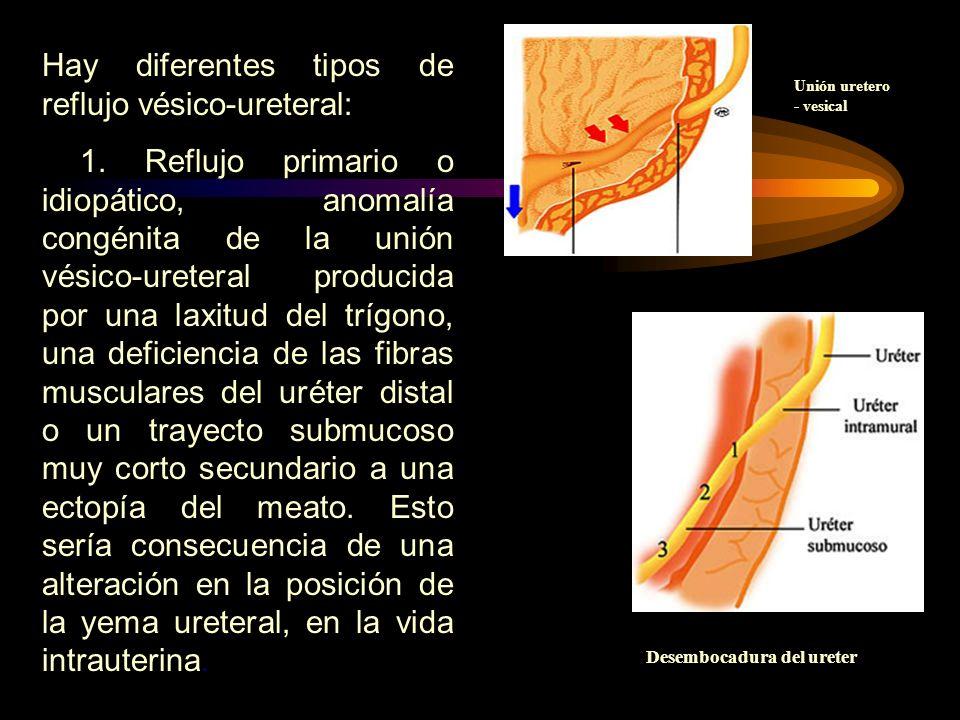 Hay diferentes tipos de reflujo vésico-ureteral: 1. Reflujo primario o idiopático, anomalía congénita de la unión vésico-ureteral producida por una la