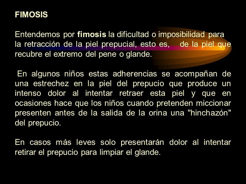 FIMOSIS Entendemos por fimosis la dificultad o imposibilidad para la retracción de la piel prepucial, esto es, de la piel que recubre el extremo del p