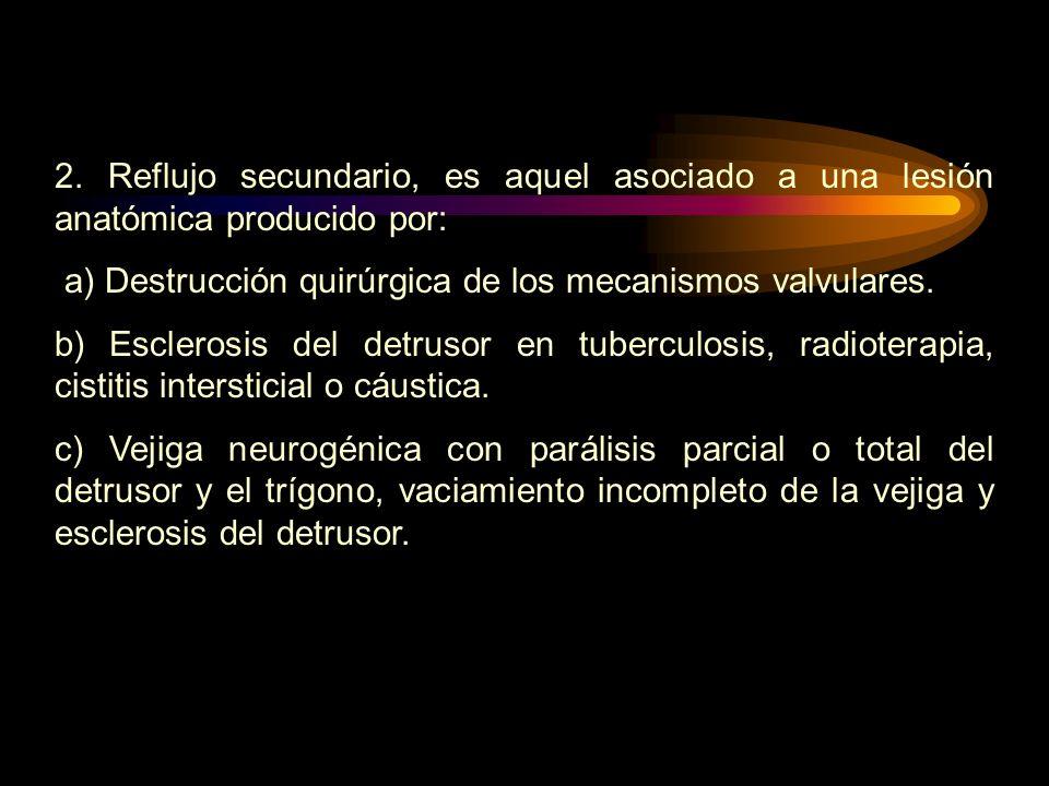 2. Reflujo secundario, es aquel asociado a una lesión anatómica producido por: a) Destrucción quirúrgica de los mecanismos valvulares. b) Esclerosis d
