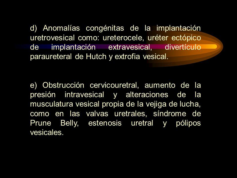 d) Anomalías congénitas de la implantación uretrovesical como: ureterocele, uréter ectópico de implantación extravesical, divertículo paraureteral de
