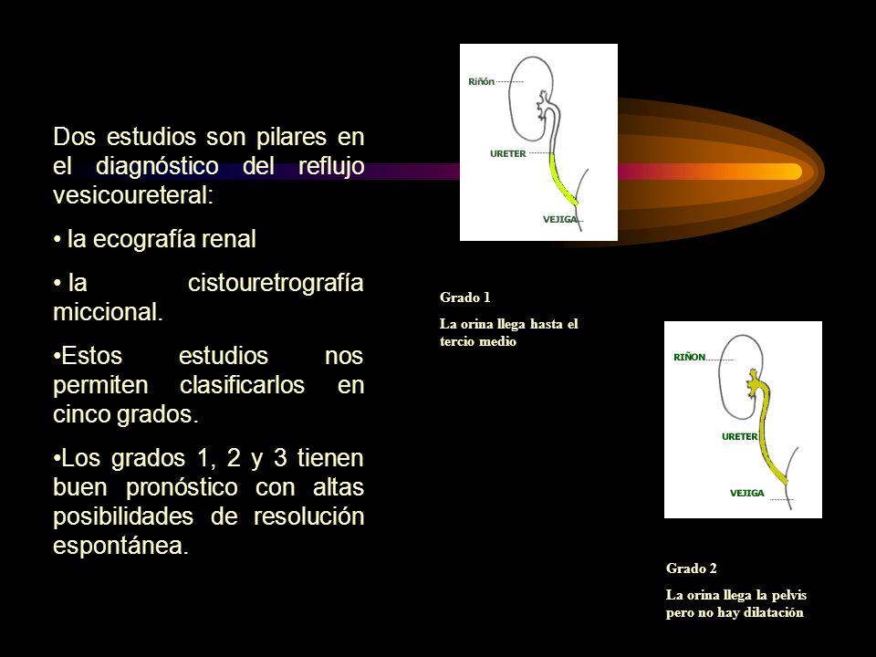 Dos estudios son pilares en el diagnóstico del reflujo vesicoureteral: la ecografía renal la cistouretrografía miccional. Estos estudios nos permiten