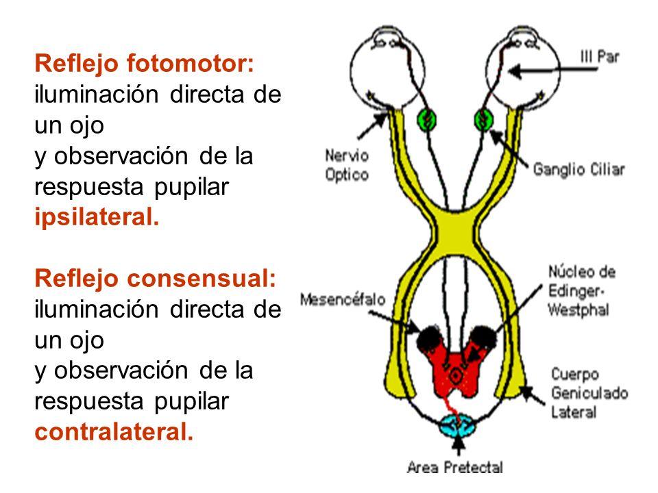 Reflejo fotomotor: iluminación directa de un ojo y observación de la respuesta pupilar ipsilateral. Reflejo consensual: iluminación directa de un ojo