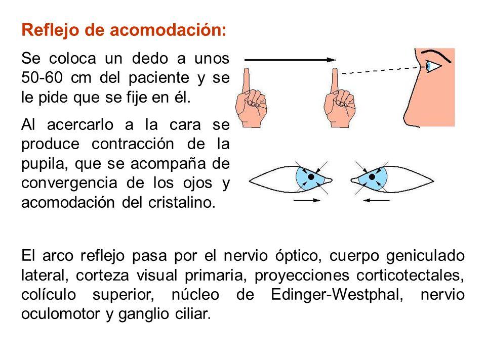 Reflejo de acomodación: Se coloca un dedo a unos 50-60 cm del paciente y se le pide que se fije en él. Al acercarlo a la cara se produce contracción d