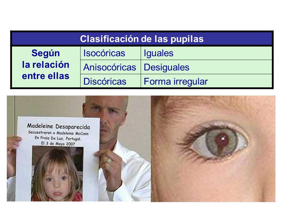 Clasificación de las pupilas Según la relación entre ellas IsocóricasIguales AnisocóricasDesiguales DiscóricasForma irregular