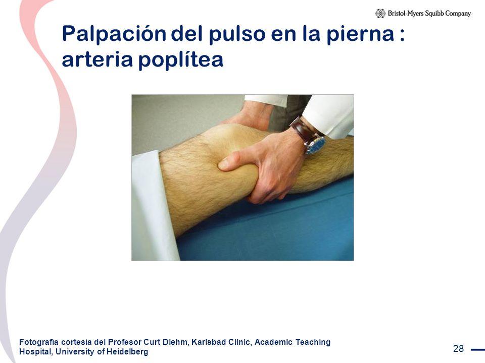 28 Palpación del pulso en la pierna : arteria poplítea Fotografía cortesía del Profesor Curt Diehm, Karlsbad Clinic, Academic Teaching Hospital, Unive