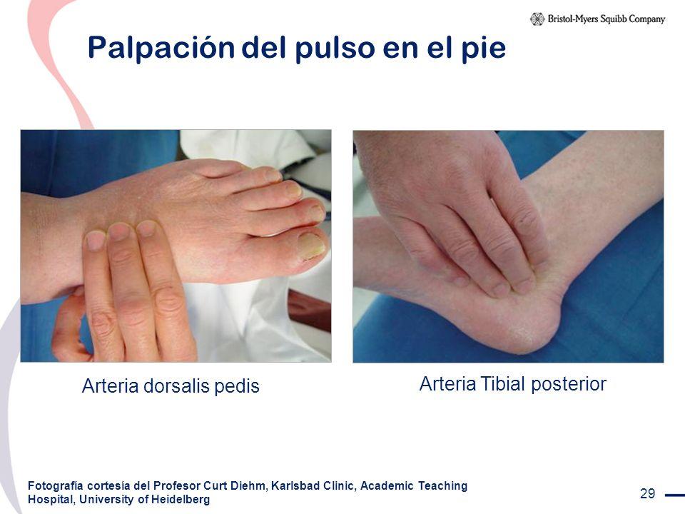 29 Palpación del pulso en el pie Fotografía cortesía del Profesor Curt Diehm, Karlsbad Clinic, Academic Teaching Hospital, University of Heidelberg Ar