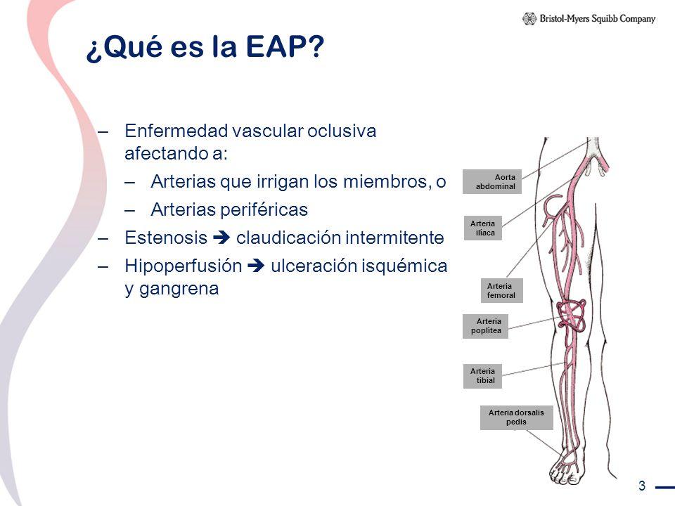 3 ¿Qué es la EAP? – Enfermedad vascular oclusiva afectando a: – Arterias que irrigan los miembros, o – Arterias periféricas – Estenosis claudicación i