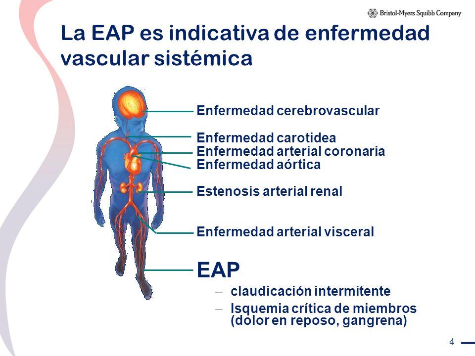 4 La EAP es indicativa de enfermedad vascular sistémica Enfermedad cerebrovascular Enfermedad carotidea Enfermedad arterial coronaria Enfermedad aórti
