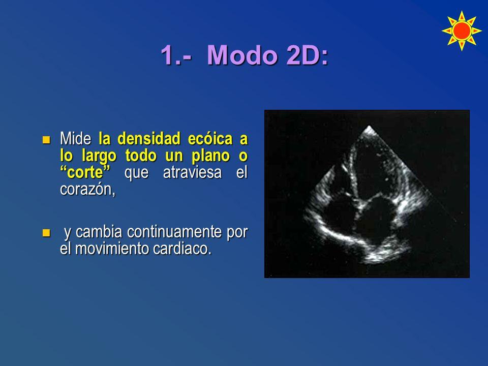 1.- Modo 2D: Mide la densidad ecóica a lo largo todo un plano o corte que atraviesa el corazón, Mide la densidad ecóica a lo largo todo un plano o cor