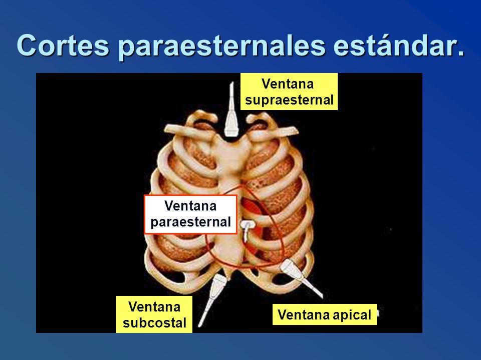 Cortes paraesternales estándar. Ventana supraesternal Ventana apical Ventana subcostal Ventana paraesternal