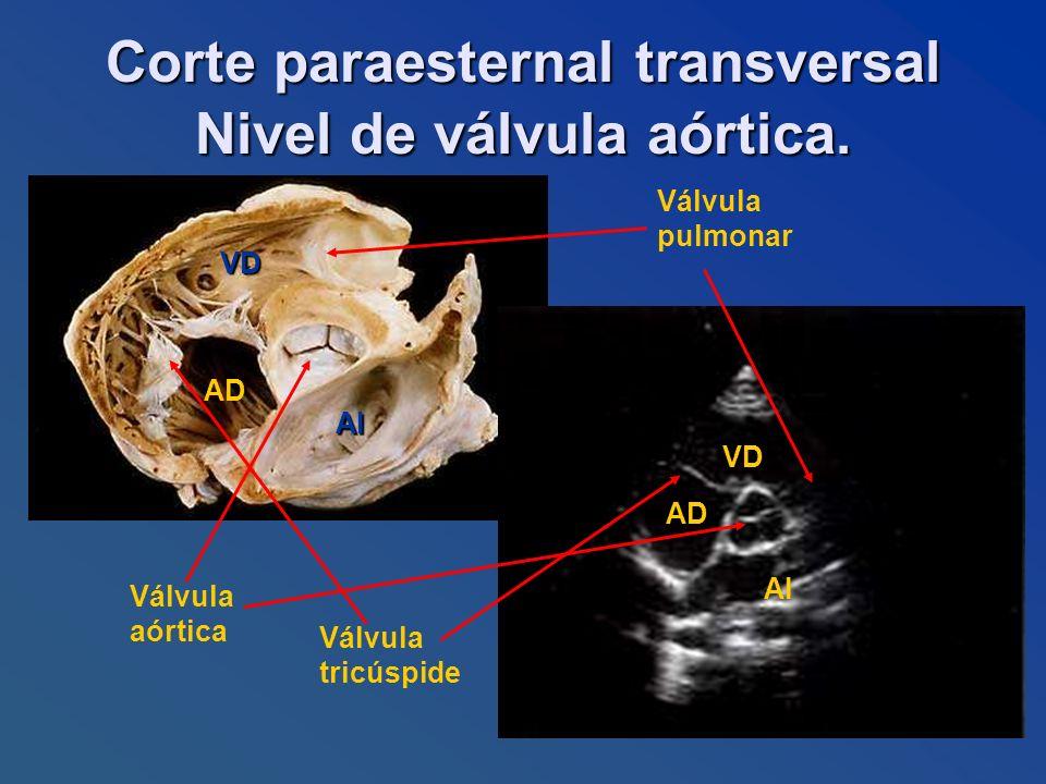 Corte paraesternal transversal Nivel de válvula aórtica. AI AD VD AI AD VD Válvula tricúspide Válvula pulmonar Válvula aórtica