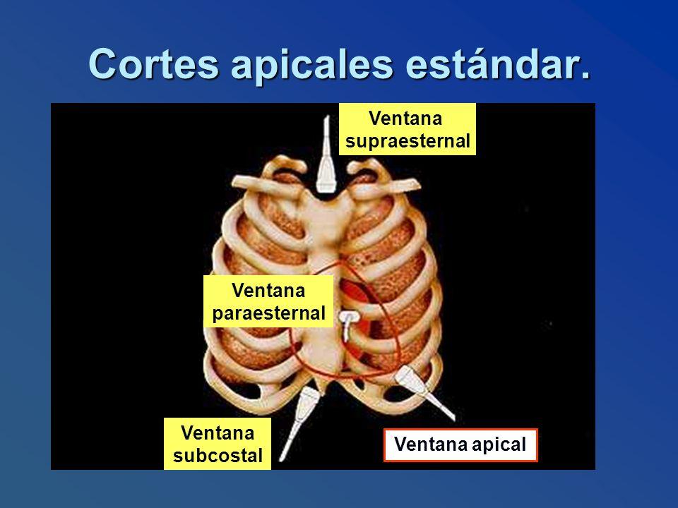 Cortes apicales estándar. Ventana supraesternal Ventana apical Ventana subcostal Ventana paraesternal