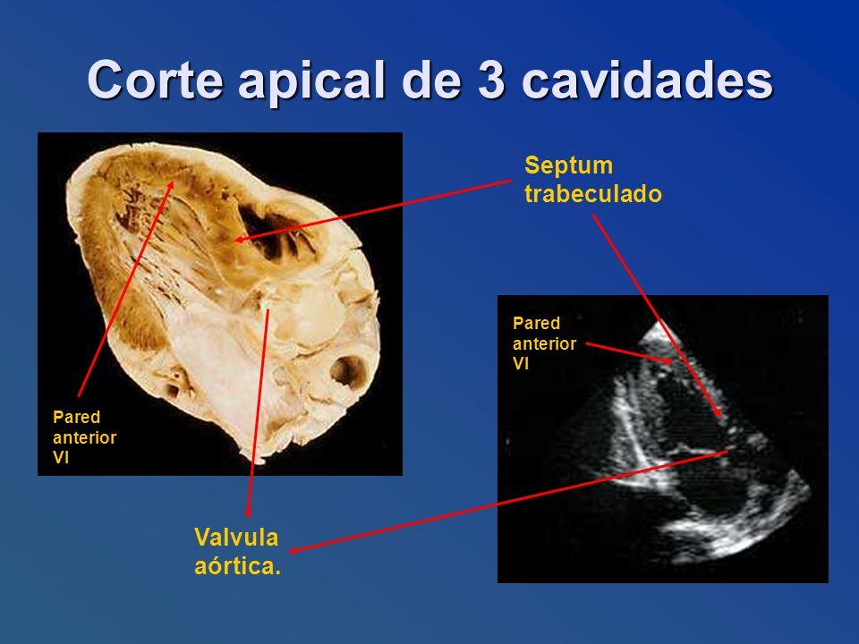 Septum trabeculado Valvula aórtica. Pared anterior VI Pared anterior VI Corte apical de 3 cavidades