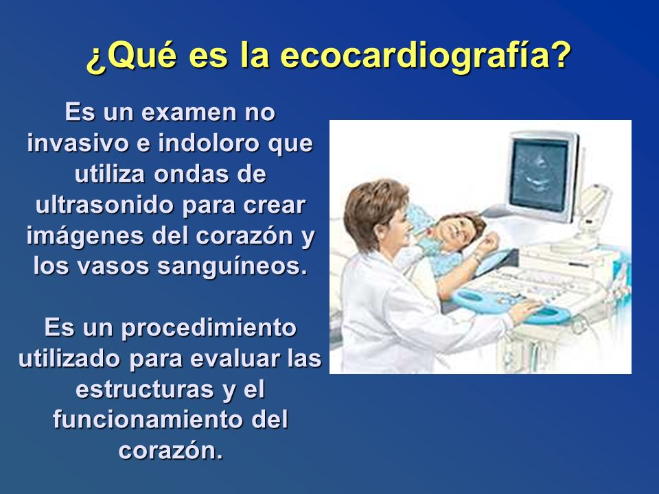 ¿Qué es la ecocardiografía? Es un examen no invasivo e indoloro que utiliza ondas de ultrasonido para crear imágenes del corazón y los vasos sanguíneo