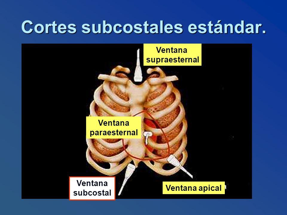 Cortes subcostales estándar. Ventana supraesternal Ventana apical Ventana subcostal Ventana paraesternal