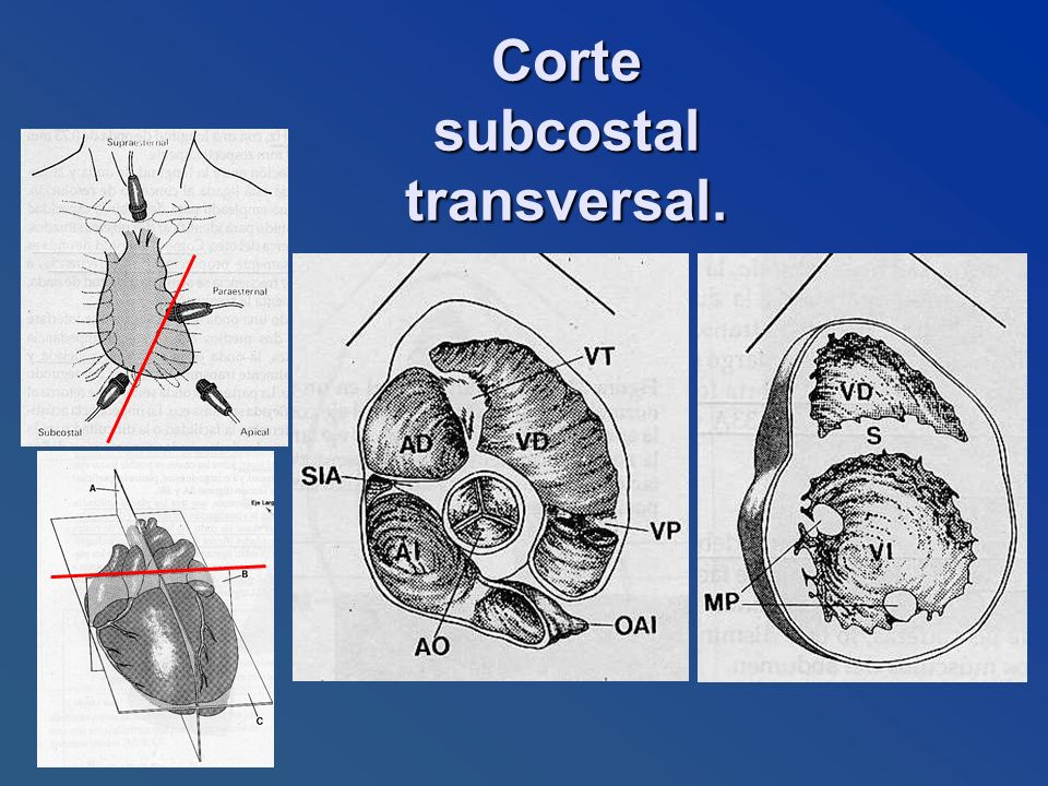 Corte subcostal transversal.