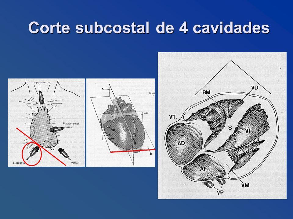Corte subcostal de 4 cavidades Corte subcostal de 4 cavidades