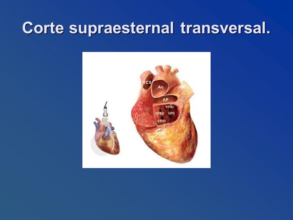 Corte supraesternal transversal. Corte supraesternal transversal.