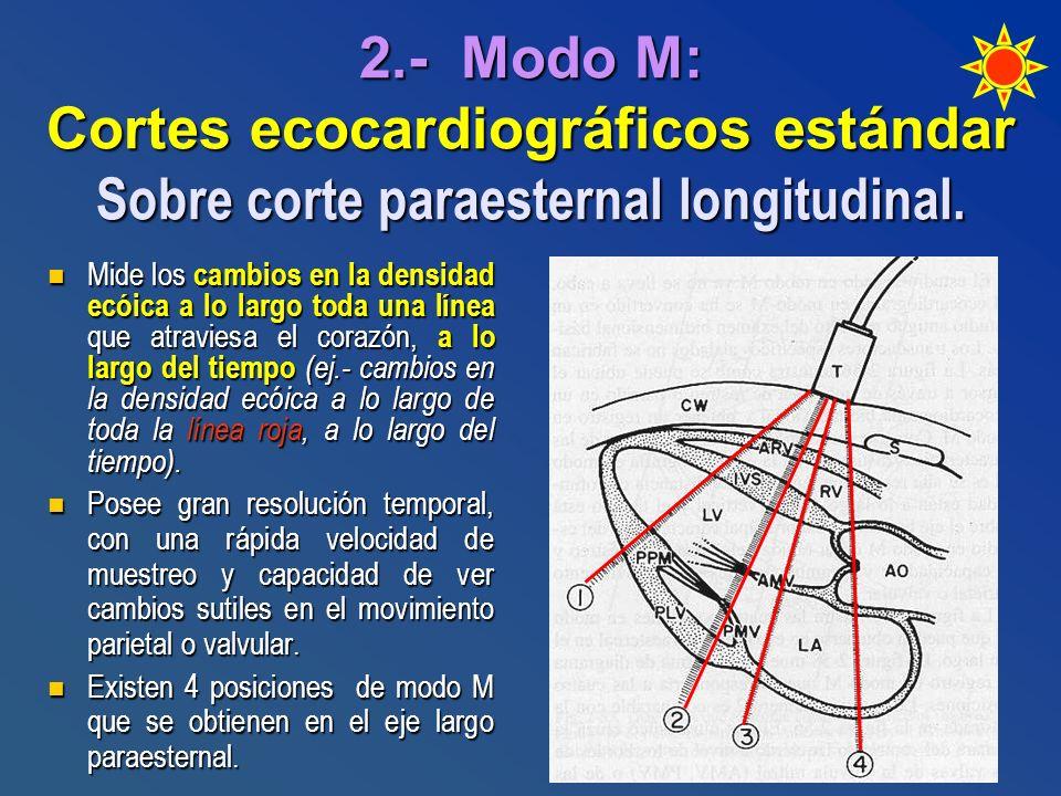 Mide los cambios en la densidad ecóica a lo largo toda una línea que atraviesa el corazón, a lo largo del tiempo (ej.- cambios en la densidad ecóica a