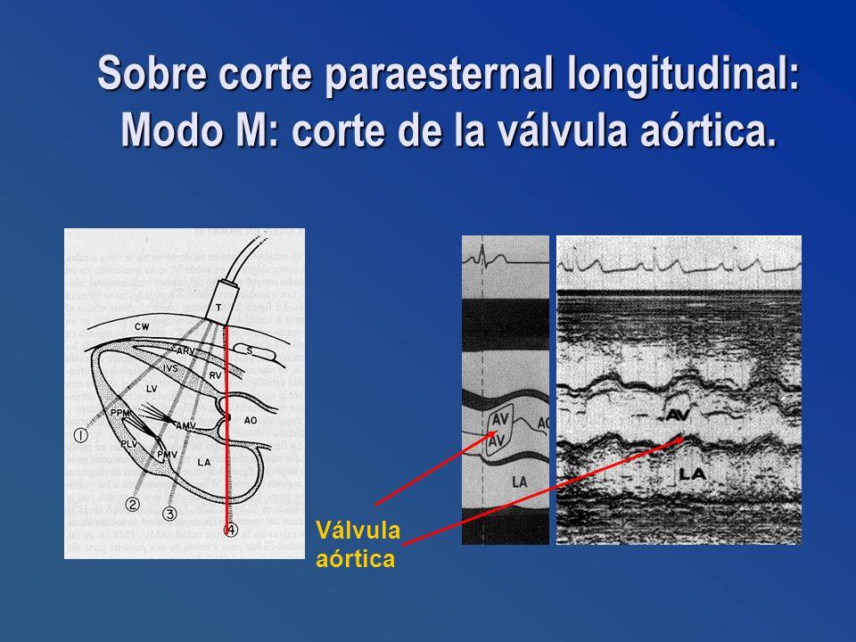 Válvula aórtica Sobre corte paraesternal longitudinal: Modo M: corte de la válvula aórtica.