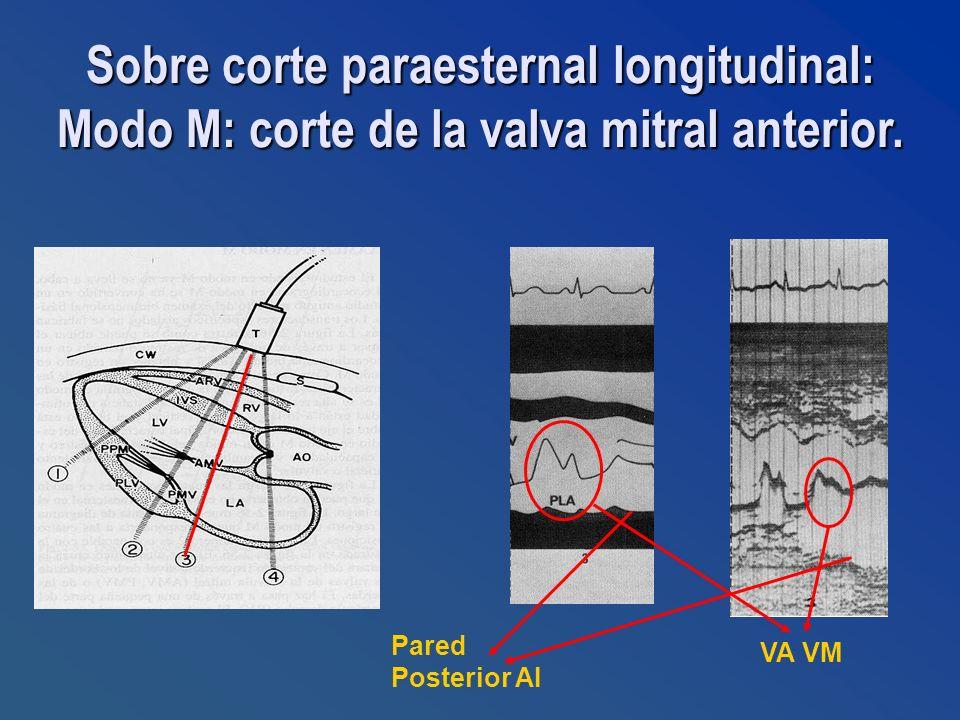 Pared Posterior AI VA VM Sobre corte paraesternal longitudinal: Modo M: corte de la valva mitral anterior.