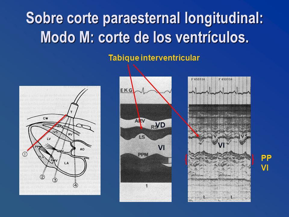 Sobre corte paraesternal longitudinal: Modo M: corte de los ventrículos. Tabique interventricular VI VD VI PP VI