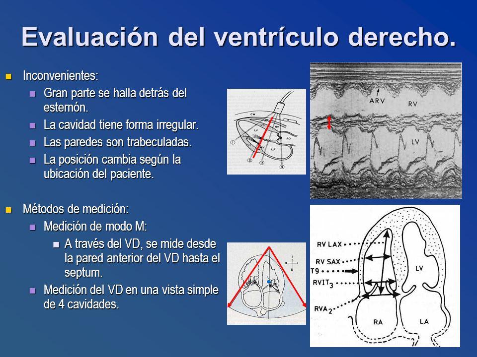 Evaluación del ventrículo derecho. Inconvenientes: Inconvenientes: Gran parte se halla detrás del esternón. Gran parte se halla detrás del esternón. L
