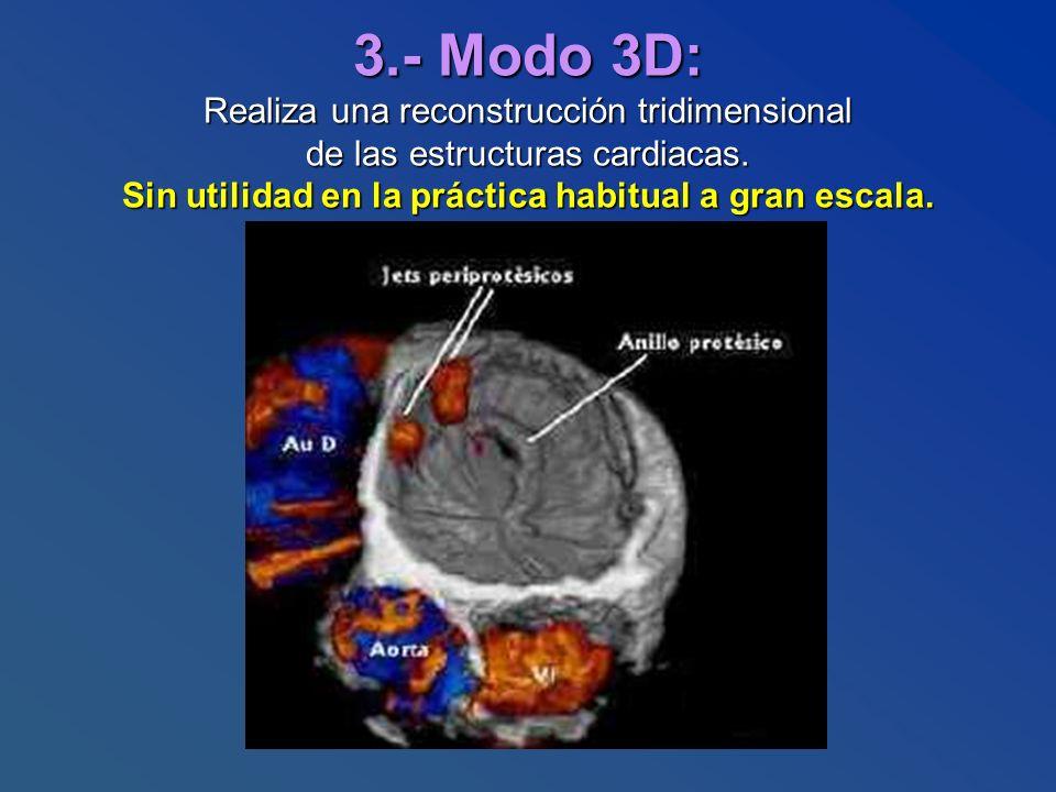 3.- Modo 3D: Realiza una reconstrucción tridimensional de las estructuras cardiacas. Sin utilidad en la práctica habitual a gran escala.