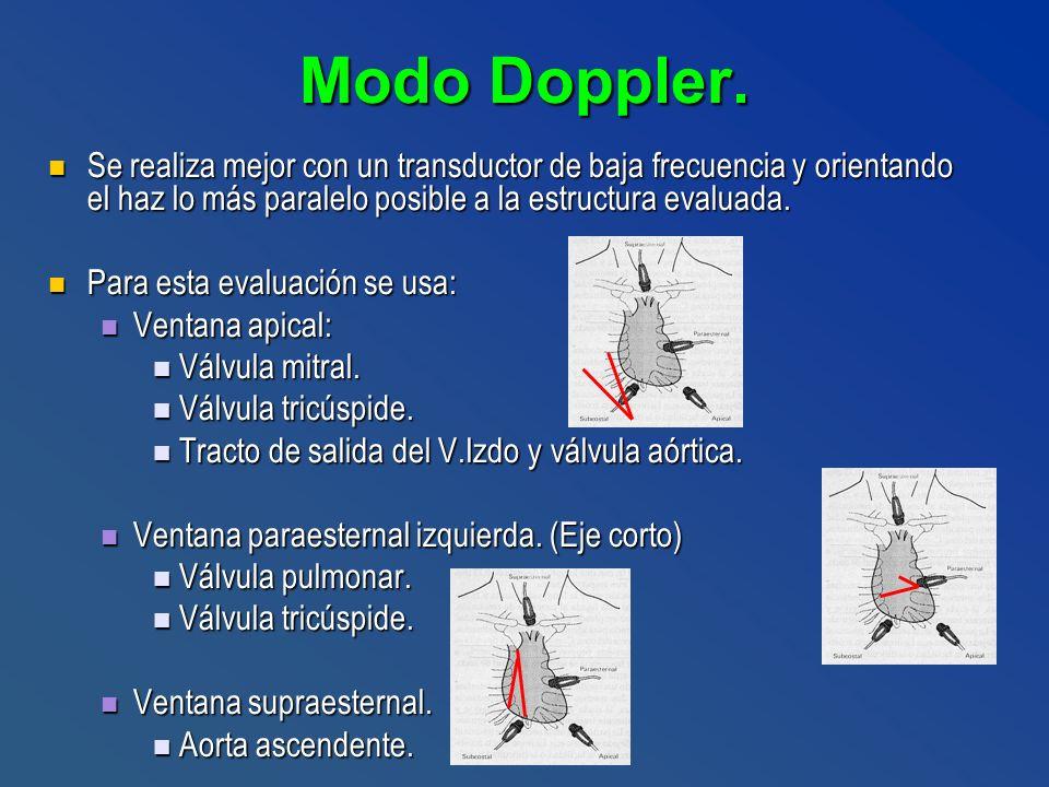 Modo Doppler. Se realiza mejor con un transductor de baja frecuencia y orientando el haz lo más paralelo posible a la estructura evaluada. Se realiza